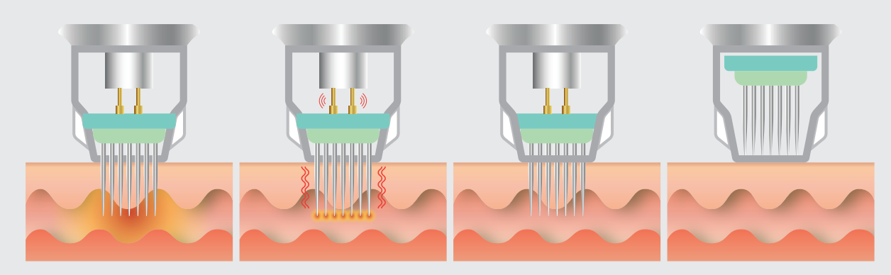 مکانیزم دستگاه آر اف فرکشنال نتل